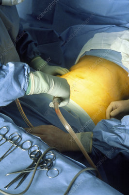 Surgeons using liposuction in cellulite operation
