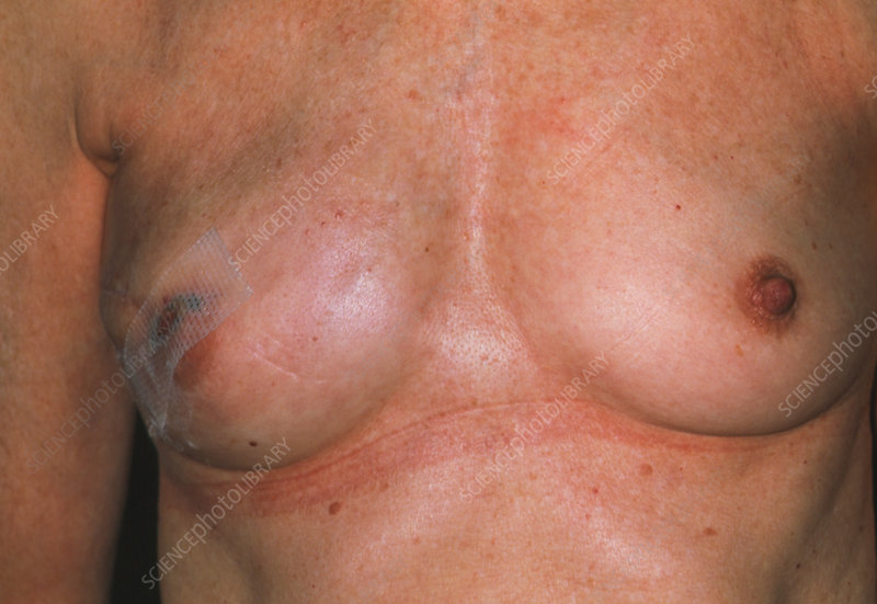 Breast reconstruction following tumour excision
