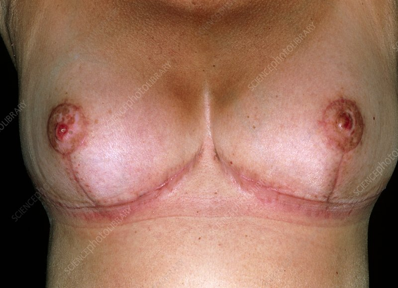 Scars after breast reduction