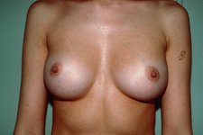 Breast enlargement, post-operative
