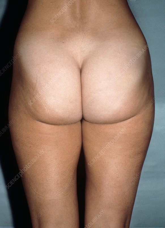 Liposuction, pre-operative