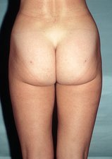 Liposuction, post-operative