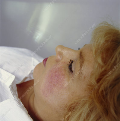 Cosmetic laser surgery