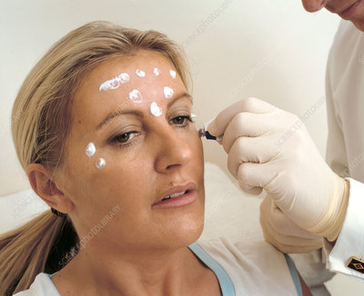 Botox facelift procedure