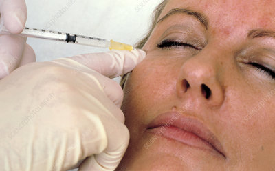 Botox facelift injection
