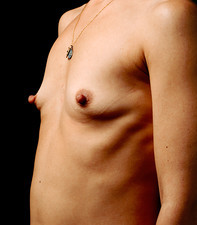 Breast enlargement, pre-operative