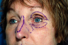 Nose and eye surgery