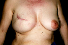 Nipple reconstruction surgery