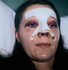 Woman after rhinoplasty
