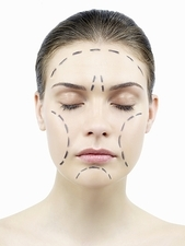 Facelift surgery markings