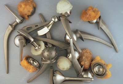 Selection of broken & used hip prostheses