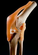 Artificial knee joint