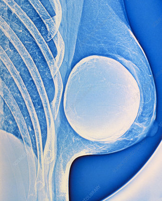 breast enhancement enlargement