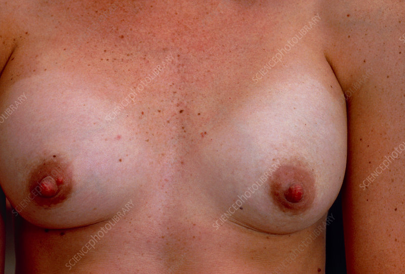 Breast implant, with hard capsule formation