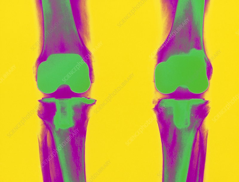 Coloured X-ray of prosthetic knee joints