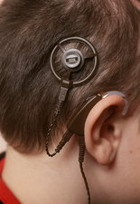 Cochlear implant fitted
