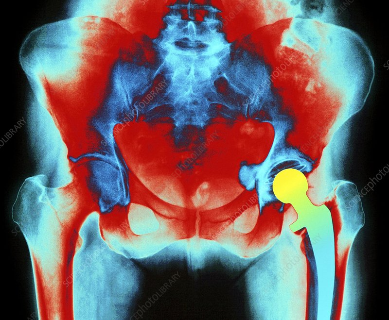 Coloured X-ray of an artificial hip joint