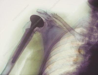 Shoulder prosthesis X-ray