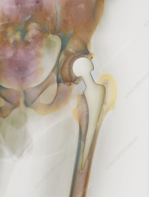 Loosened hip replacement, X-ray