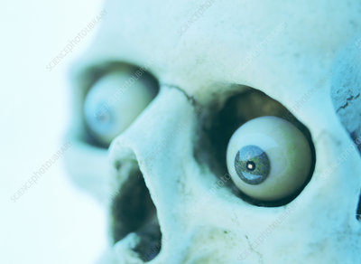 Artificial eyes in skull