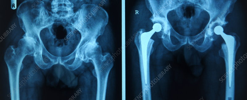 Hip replacement, X-ray