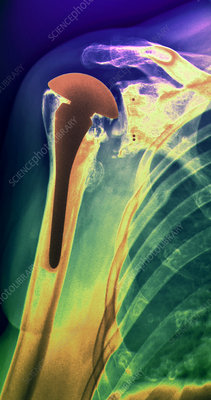 Artificial shoulder, X-ray