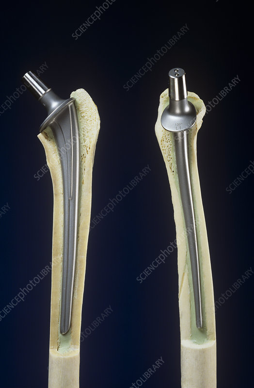 Artificial hip joints