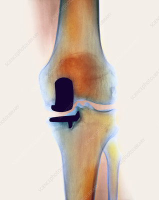 Knee joint prosthesis, X-ray