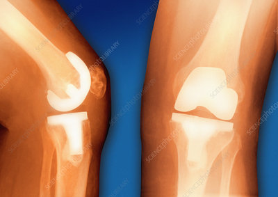 Prosthetic knee joint, coloured X-ray