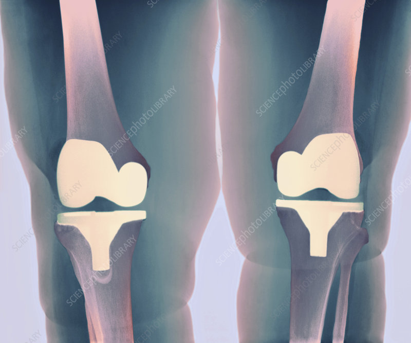 Prosthetic knee joints, X-ray