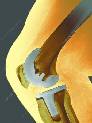 Prosthetic knee joint, X-ray