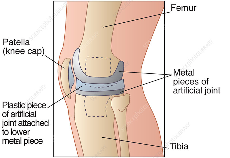 Knee replacement, artwork