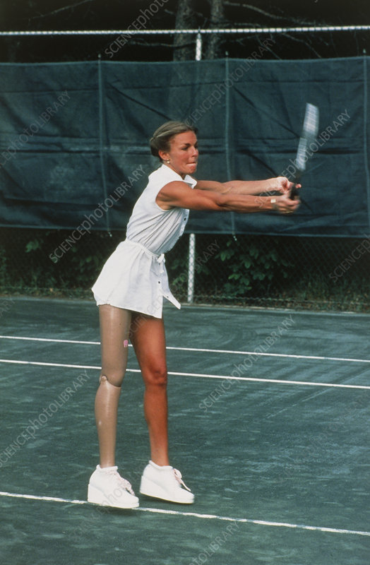 Woman with artificial leg playing tennis