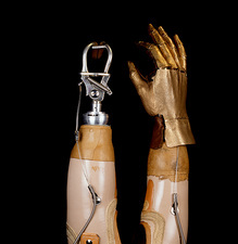 اندامهای مصنوعی اندام فوقانی