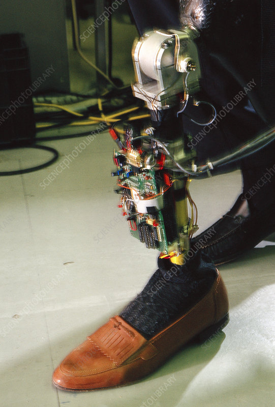 Robotic knee