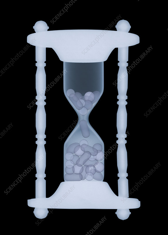 Hourglass, X-ray