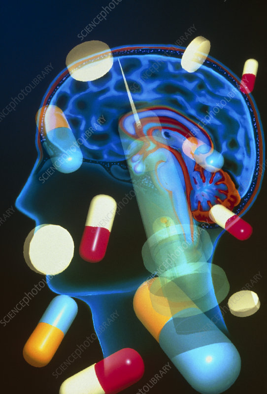 Artwork of drugs used to treat the brain