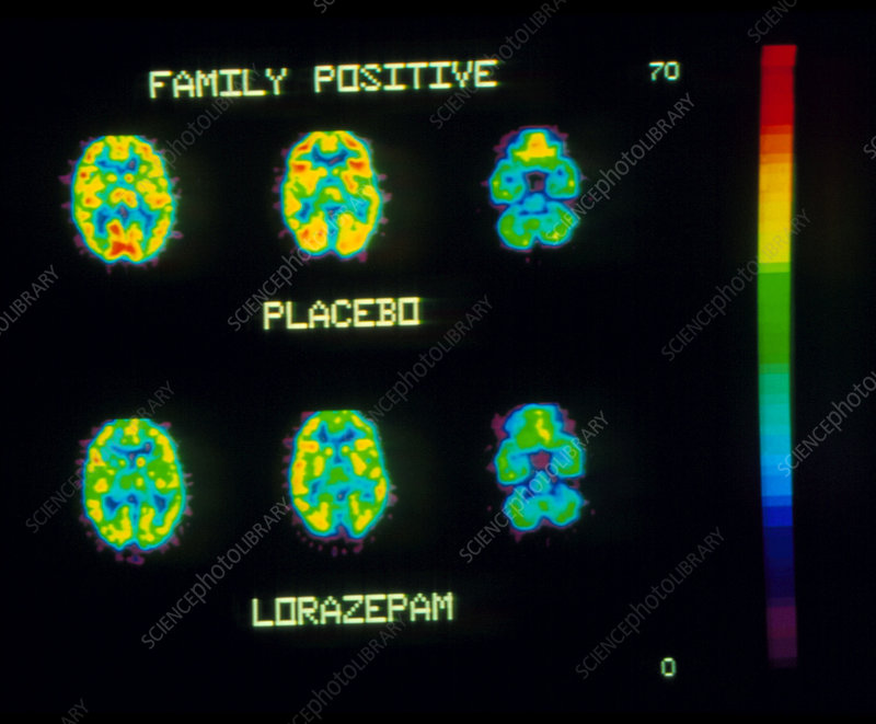 Coloured PET brain scans showing lorazepam action