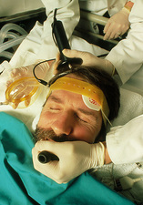 Patient receiving electroconvulsive therapy