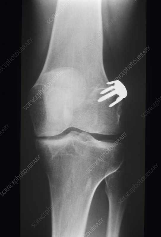 Stapled ligament, X-ray