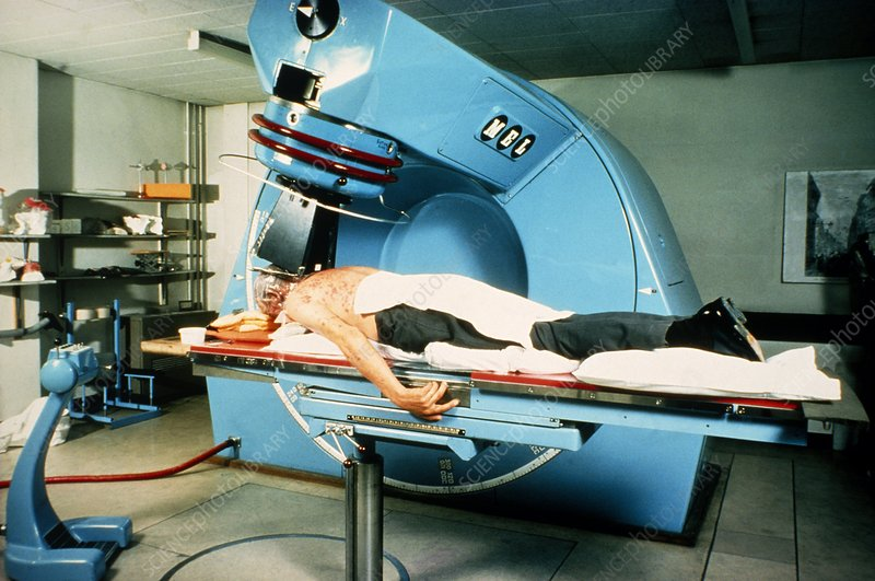 Radiation treatment for cancer