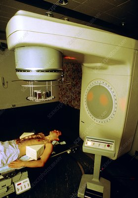 Person undergoing radiotherapy for Hodgkin's