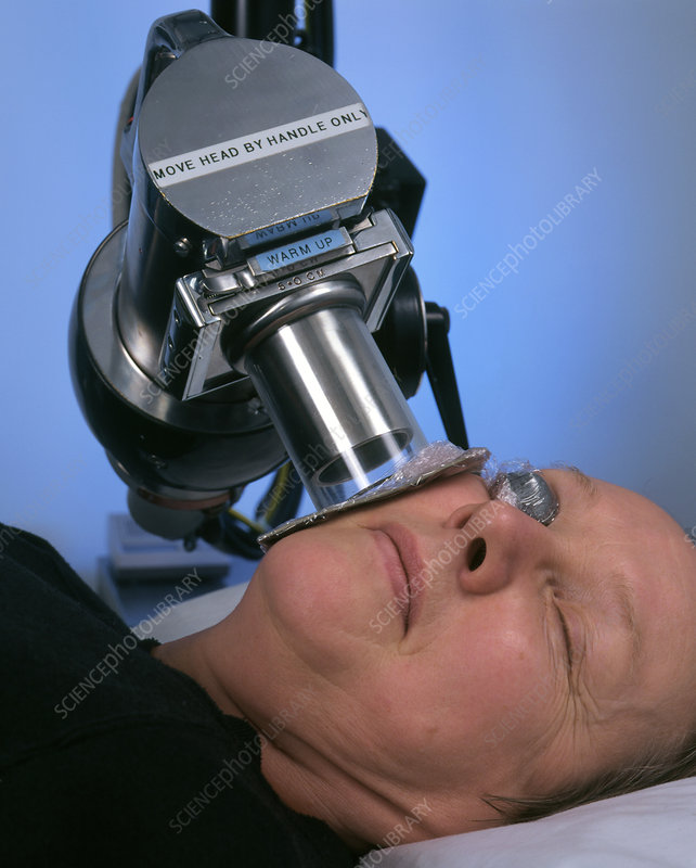Radiotherapy Treatment Of Skin Cancer On Cheek Stock Image M705 0132 Science Photo Library