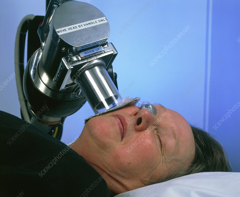 Radiotherapy Treatment Of Skin Cancer On Cheek Stock Image M705 0133 Science Photo Library