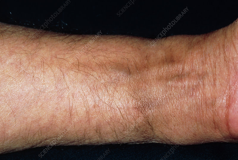 Pigmentation in man's wrist following chemotherapy