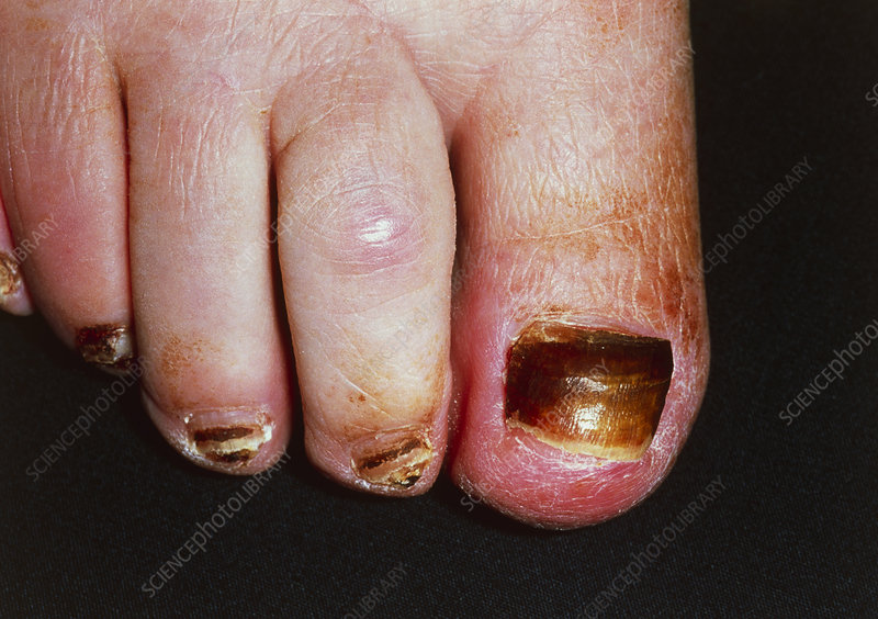Toenail dystrophy due to mitozantrone chemotherapy