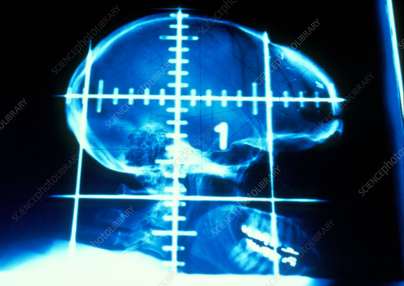 Grid on X-ray of a skull depicting radiotherapy