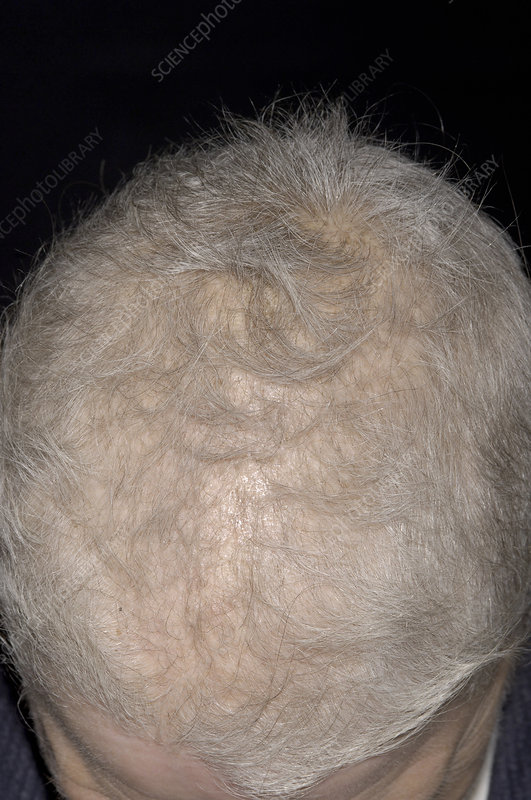 Hair regrowth after chemotherapy