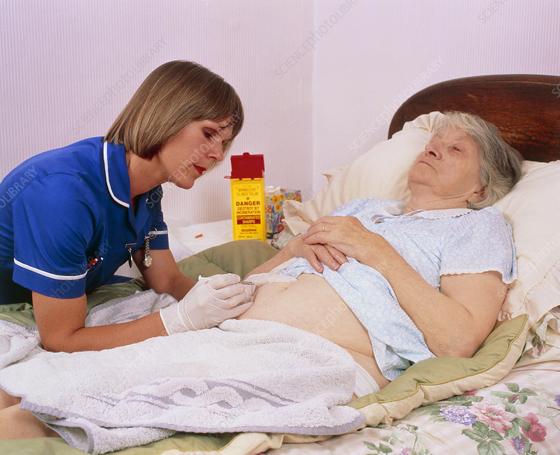 District nurse: abdominal injection of old woman