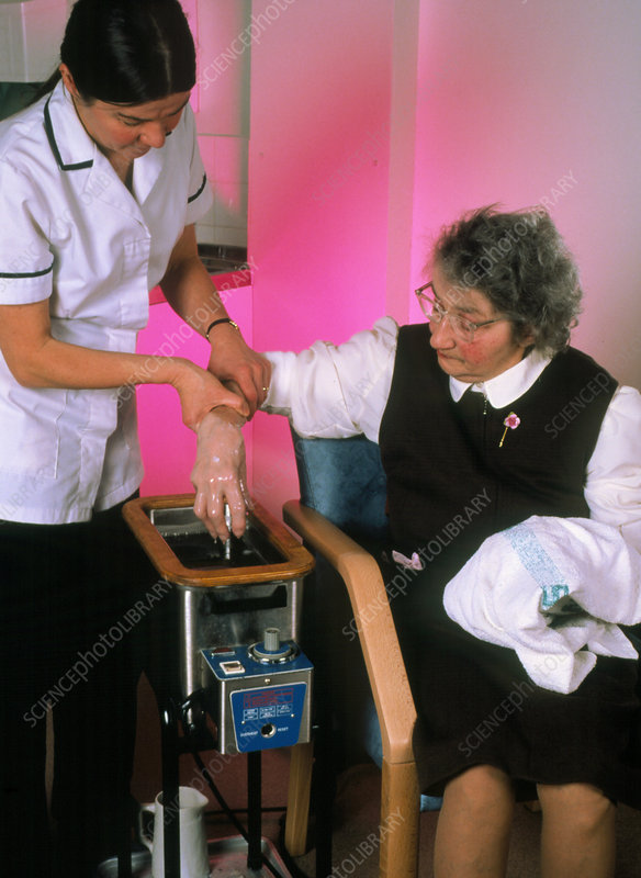Woman undergoing wax bath treatment for arthritis